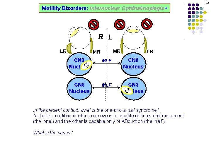 93 Motility Disorders: Internuclear Ophthalmoplegia+ R L MR CN 3 R M SN Nucleus
