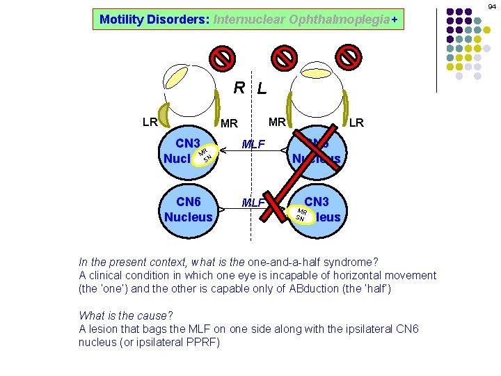94 Motility Disorders: Internuclear Ophthalmoplegia+ R L MR CN 3 R M SN Nucleus