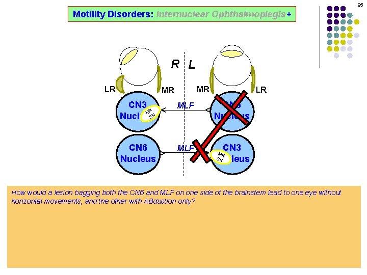 95 Motility Disorders: Internuclear Ophthalmoplegia+ R L MR CN 3 R M SN Nucleus