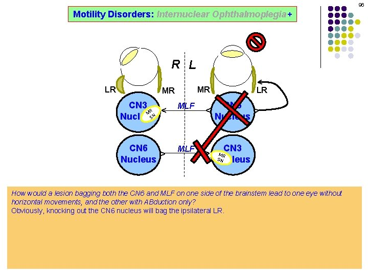 96 Motility Disorders: Internuclear Ophthalmoplegia+ ^ R L MR MLF ^ ^ CN 6