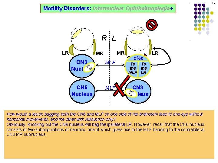 97 Motility Disorders: Internuclear Ophthalmoplegia+ ^ R L MR MLF ^ ^ CN 6