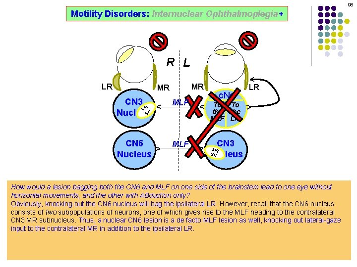 98 Motility Disorders: Internuclear Ophthalmoplegia+ ^ R L MR MLF ^ ^ CN 6