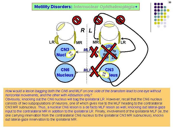 99 Motility Disorders: Internuclear Ophthalmoplegia+ ^ R L MLF ^ ^ ^ CN 6