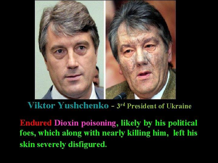 Dioxin poisoning Viktor Yushchenko - 3 rd President of Ukraine Endured Dioxin poisoning, likely