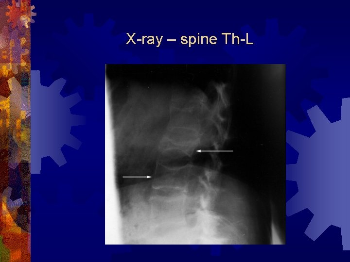 X-ray – spine Th-L