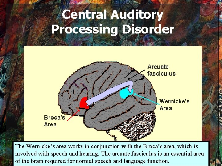Central Auditory Processing Disorder The Wernicke's area works in conjunction with the Broca's area,