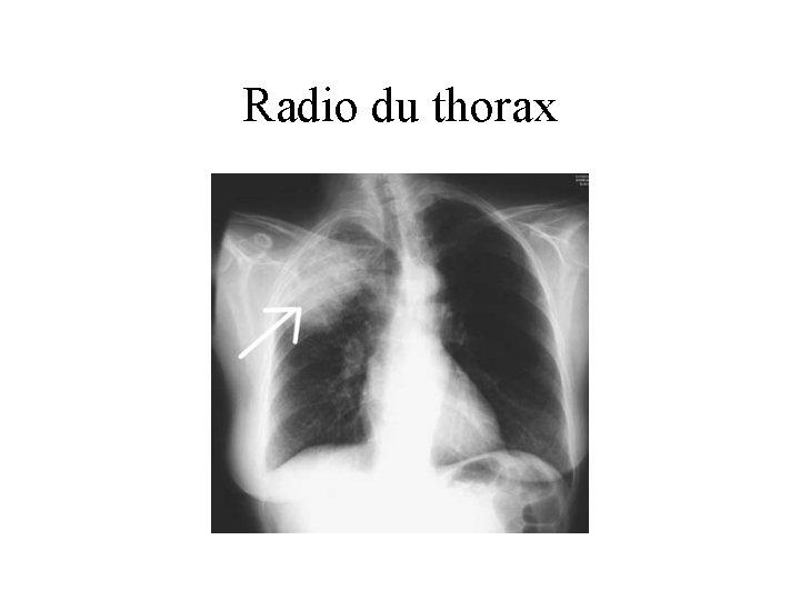 Radio du thorax