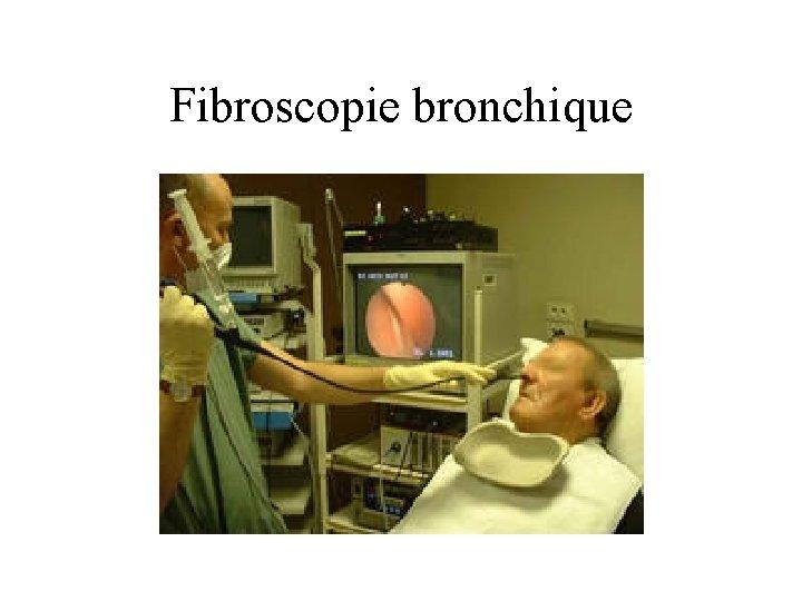Fibroscopie bronchique