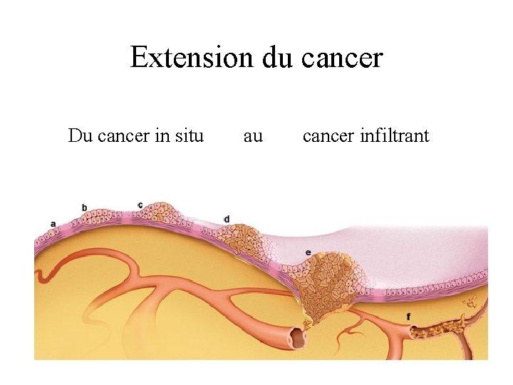 Extension du cancer Du cancer in situ au cancer infiltrant