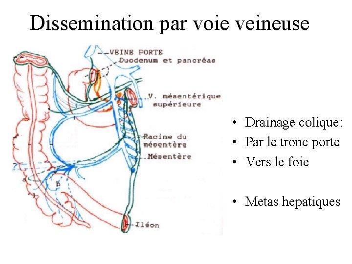 Dissemination par voie veineuse • Drainage colique: • Par le tronc porte • Vers