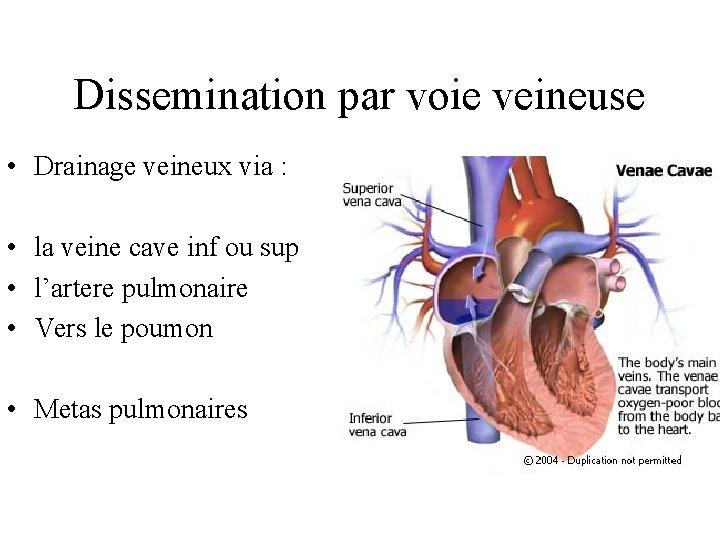 Dissemination par voie veineuse • Drainage veineux via : • la veine cave inf