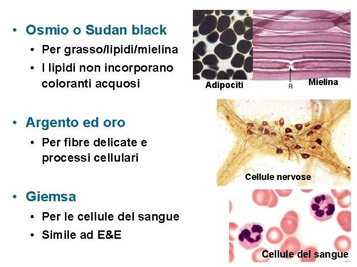 • Osmio o Sudan black • Per grasso/lipidi/mielina • I lipidi non incorporano