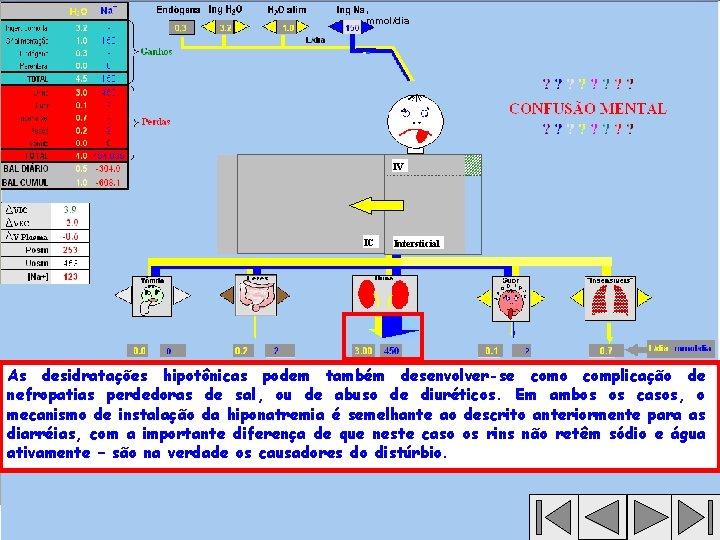 , mmol/dia IV IC Intersticial As desidratações hipotônicas podem também desenvolver-se como complicação de