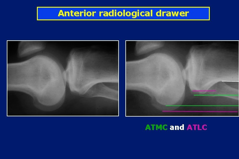 Anterior radiological drawer ATMC and ATLC