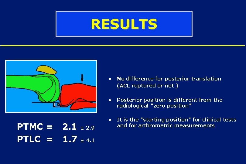 RESULTS • No difference for posterior translation (ACL ruptured or not ) PTMC =
