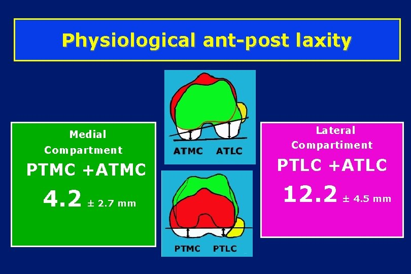 Physiological ant-post laxity Medial Compartment PTMC +ATMC 4. 2 ± 2. 7 mm Lateral