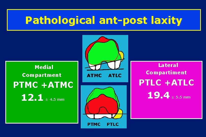Pathological ant-post laxity Medial Compartment PTMC +ATMC 12. 1 ± 4. 5 mm Lateral
