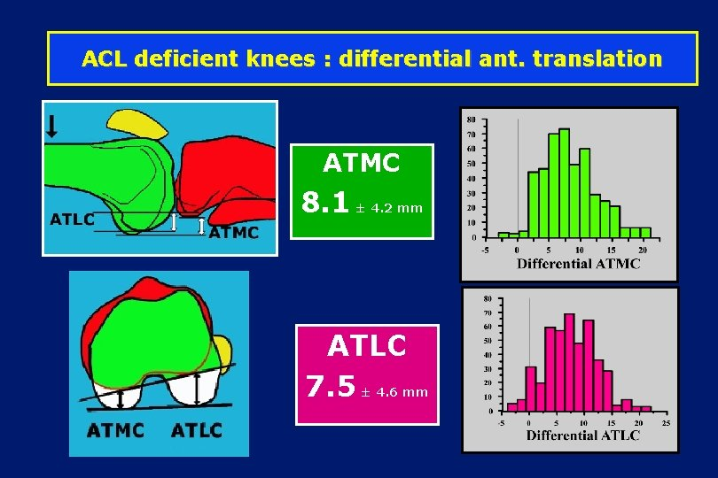 ACL deficient knees : differential ant. translation ATMC 8. 1 ± 4. 2 mm