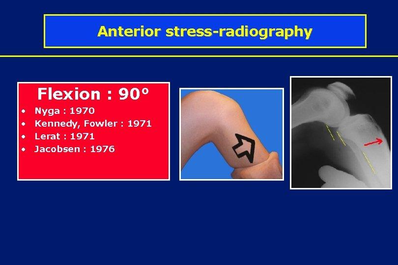 Anterior stress-radiography Flexion : 90° • • Nyga : 1970 Kennedy, Fowler : 1971