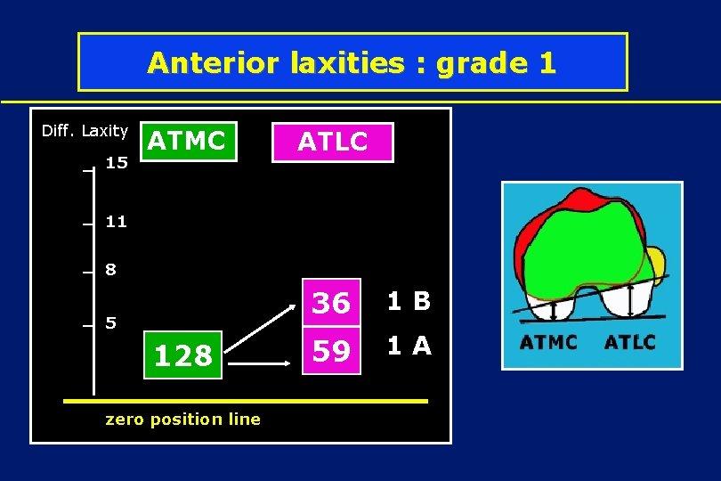 Anterior laxities : grade 1 Diff. Laxity 15 ATMC ATLC 1 D 11 1
