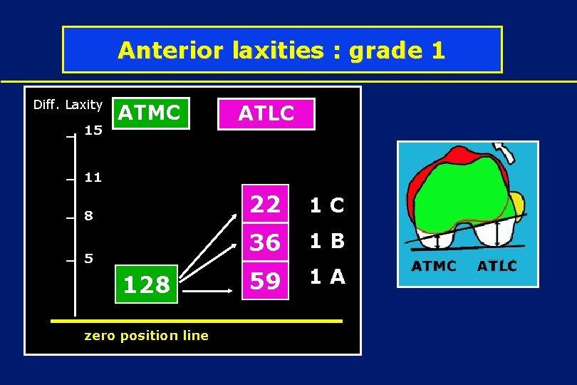 Anterior laxities : grade 1 Diff. Laxity 15 ATMC ATLC 1 D 11 8