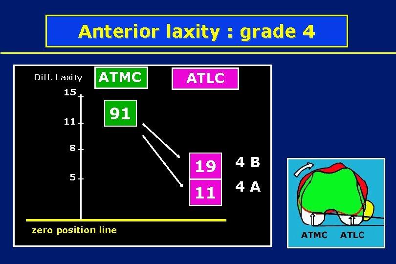 Anterior laxity : grade 4 Diff. Laxity ATMC ATLC 15 11 91 4 D
