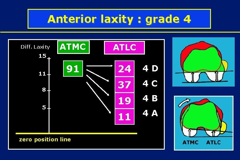 Anterior laxity : grade 4 Diff. Laxity ATMC ATLC 91 24 4 D 37