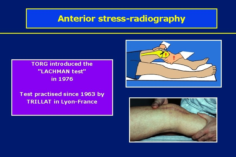 """Anterior stress-radiography TORG introduced the """"LACHMAN test"""" in 1976 Test practised since 1963 by"""