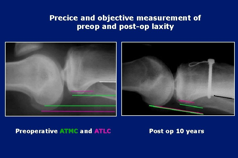 Precice and objective measurement of preop and post-op laxity Preoperative ATMC and ATLC Post
