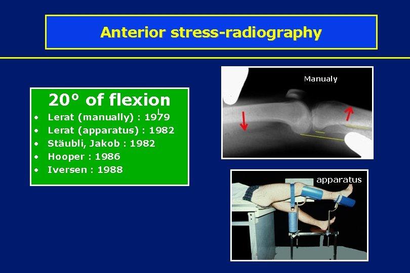 Anterior stress-radiography Manualy 20° of flexion • • • l Lerat (manually) : 1979