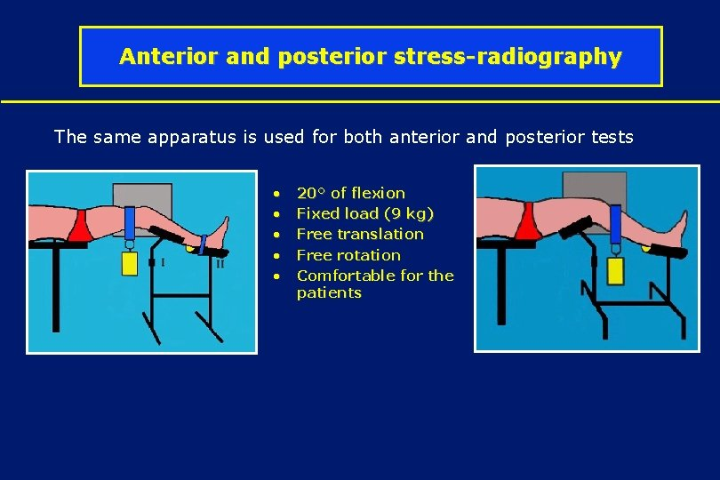 Anterior and posterior stress-radiography The same apparatus is used for both anterior and posterior