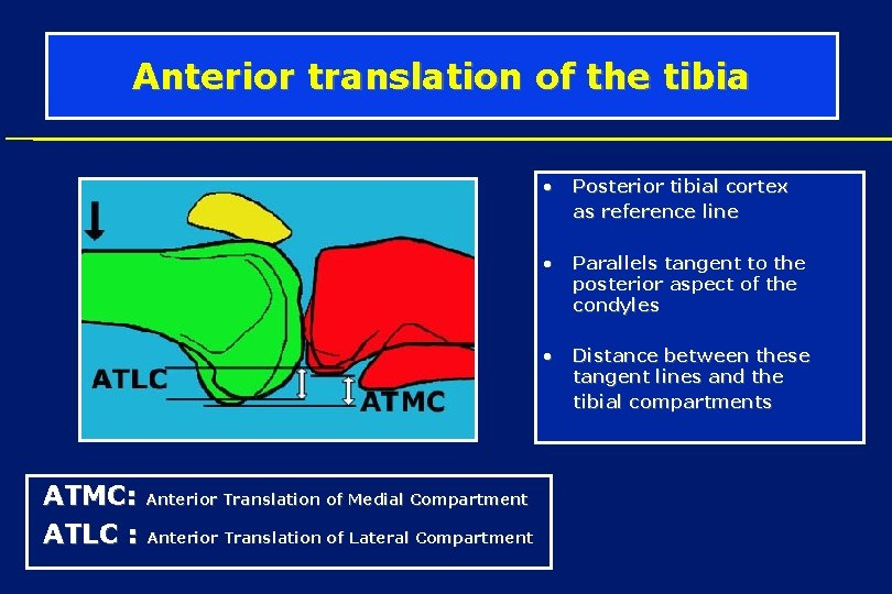 Anterior translation of the tibia • Posterior tibial cortex as reference line • •