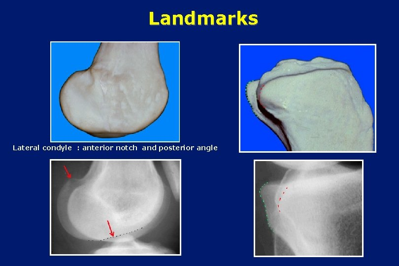 Landmarks Lateral condyle : anterior notch and posterior angle
