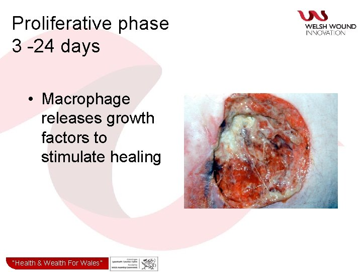 """Proliferative phase 3 -24 days • Macrophage releases growth factors to stimulate healing """"Health&"""