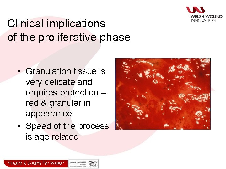 Clinical implications of the proliferative phase • Granulation tissue is very delicate and requires