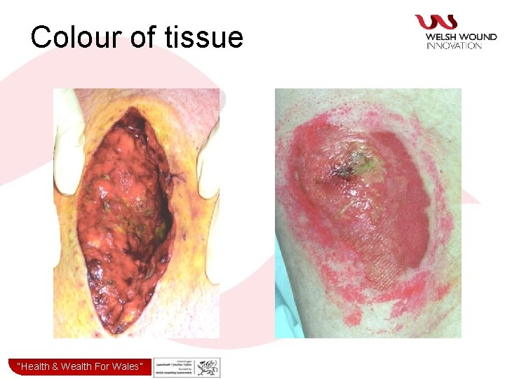"""Colour of tissue """"Health& & Wealth for Wales"""" """"Health Wealth For Wales"""""""