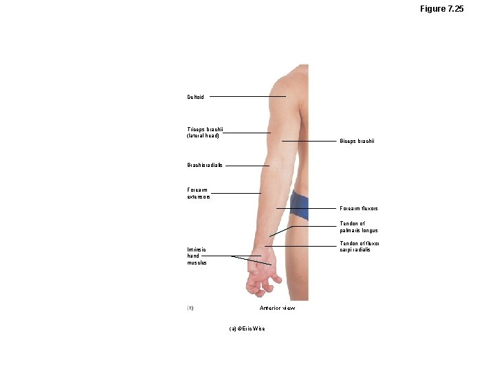 Figure 7. 25 Deltoid Triceps brachii (lateral head) Biceps brachii Brachioradialis Forearm extensors Forearm
