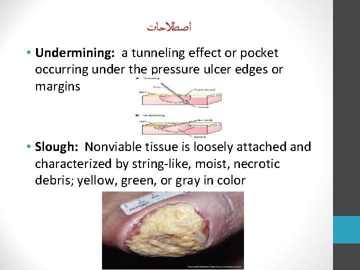 ﺍﺻﻄﻼﺣﺎﺕ • Undermining: a tunneling effect or pocket occurring under the pressure ulcer