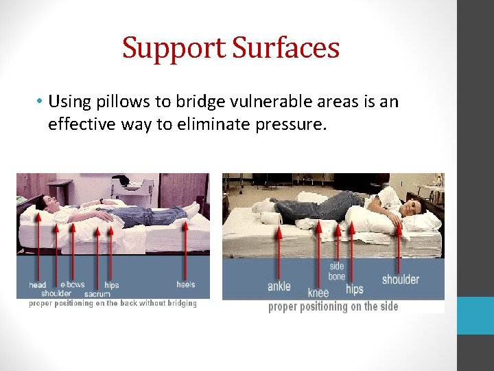 Support Surfaces • Using pillows to bridge vulnerable areas is an effective way to
