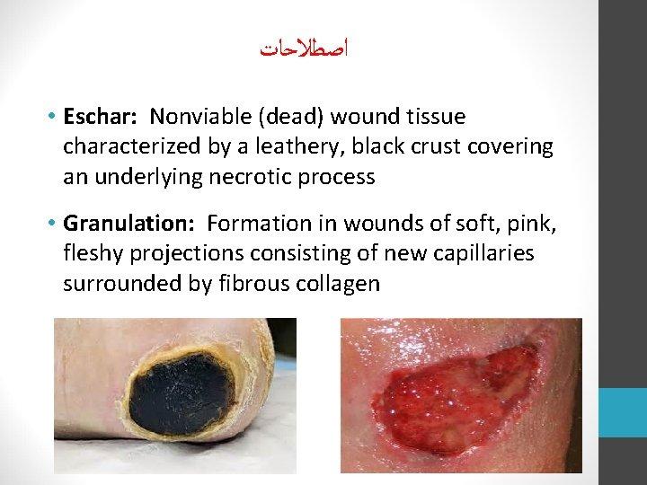 ﺍﺻﻄﻼﺣﺎﺕ • Eschar: Nonviable (dead) wound tissue characterized by a leathery, black crust