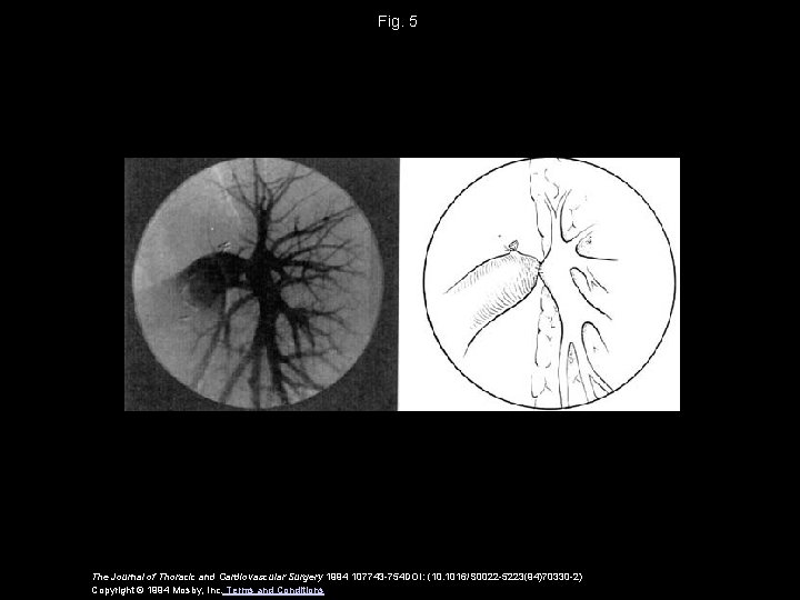 Fig. 5 The Journal of Thoracic and Cardiovascular Surgery 1994 107743 -754 DOI: (10.