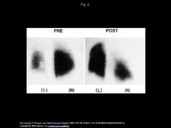 Fig. 6 The Journal of Thoracic and Cardiovascular Surgery 1994 107743 -754 DOI: (10.