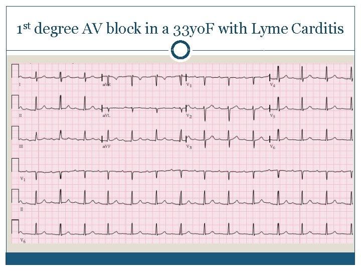 1 st degree AV block in a 33 yo. F with Lyme Carditis
