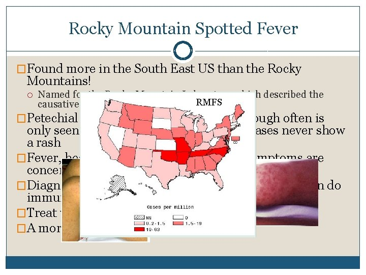 Rocky Mountain Spotted Fever �Found more in the South East US than the Rocky