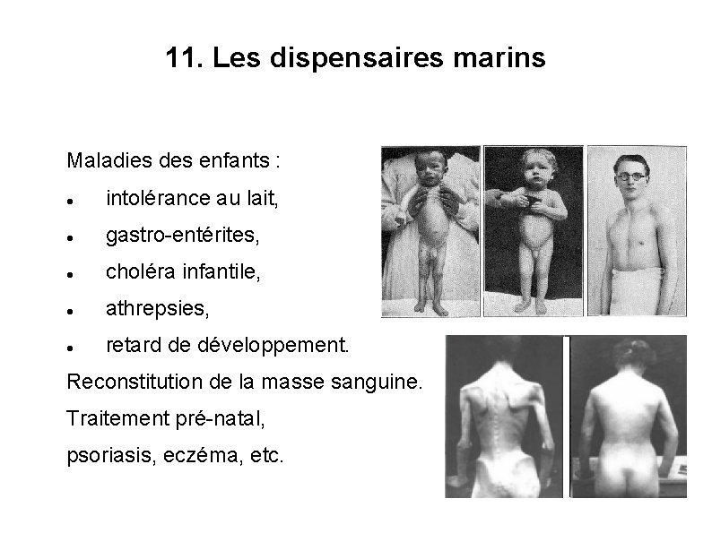 11. Les dispensaires marins Maladies des enfants : intolérance au lait, gastro-entérites, choléra infantile,