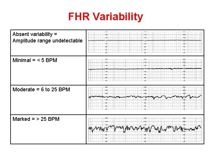 FHR Variability Absent variability = Amplitude range undetectable Minimal = < 5 BPM Moderate