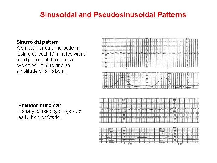 Sinusoidal and Pseudosinusoidal Patterns Sinusoidal pattern: A smooth, undulating pattern, lasting at least 10