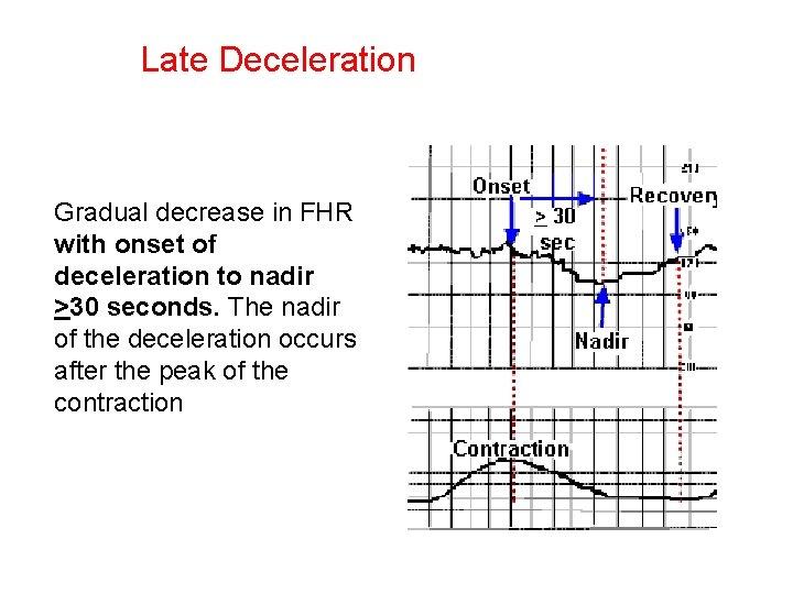 Late Deceleration Gradual decrease in FHR with onset of deceleration to nadir >30 seconds.
