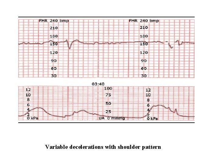 Variable decelerations with shoulder pattern