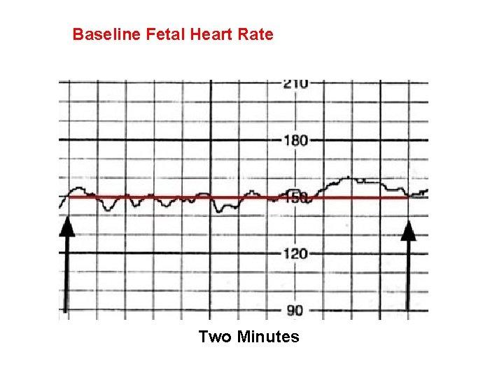 Baseline Fetal Heart Rate Two Minutes